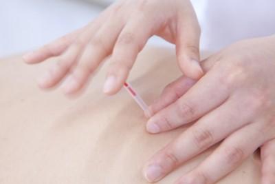 初めての人必読「鍼を痛く感じないための心得」